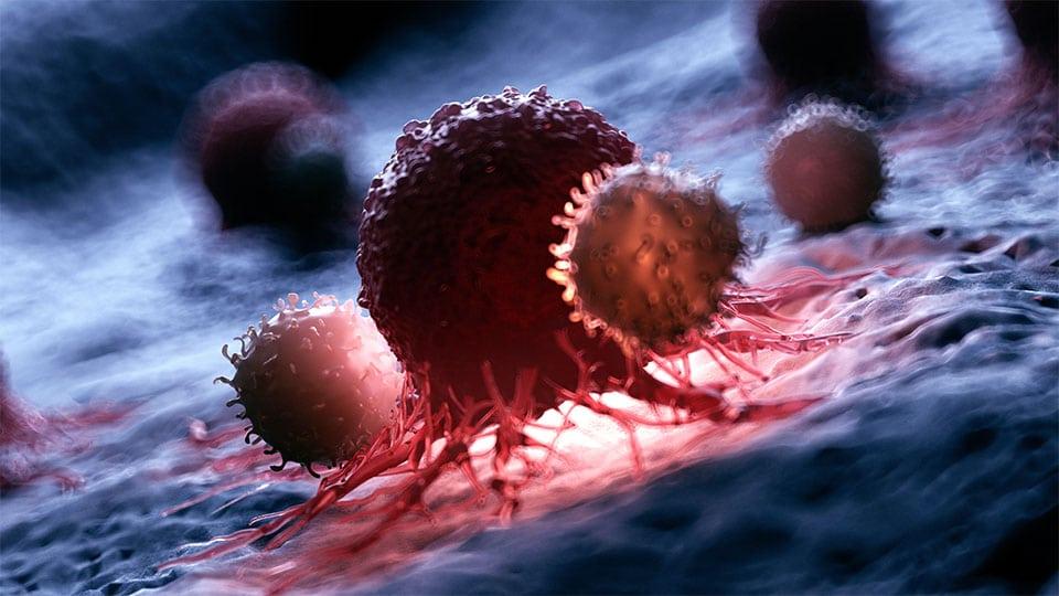6 Tipps die Krebs vorbeugen sollen